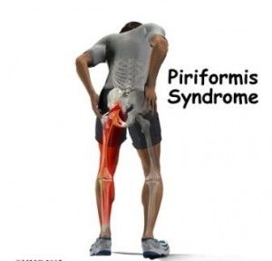 Piriformis-syndrome-trigger-point-therapy